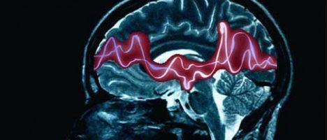 Nuova classificazione delle epilessie: convegno il 15 ottobre a Roccalumera