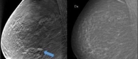 Diagnostica Senologica del Papardo: arrivano due mammografi e un ecografo di ultima generazione
