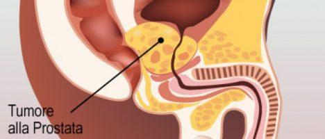 Il tumore alla prostata colpisce 21mila siciliani: la nostra regione è all'avanguardia