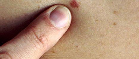 Farmaci con idroclorotiazide (HTCZ): rischio tumore cutaneo non melanoma (TCNM)