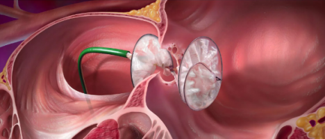 Il buco con il cuore intorno: Forame ovale pervio, un'epidemia dei nostri giorni