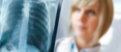 Malattie polmonari croniche in medicina generale: due incontri a Messina il 18 e 25 maggio