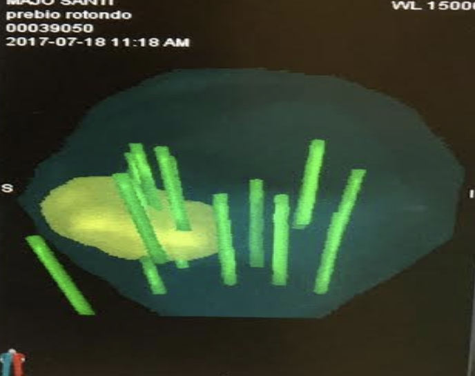 biopsia prostata sospetto carcinoma symptoms