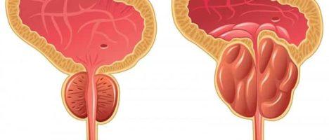 Oltre 6 milioni di italiani over 50 soffrono di ipertrofia prostatica benigna