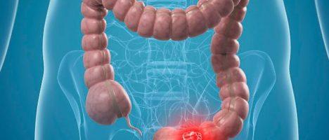 Prevenzione tumore del colon, abisso tra Nord e Sud Italia