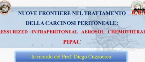 """""""Nuove frontiere nel trattamento della carcinosi peritoneale – PIPAC"""" il 31 gennaio al Palazzo dei Congressi AOU """"G. Martino"""""""