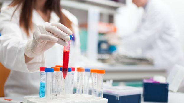Giovane ricercatrice contagiata da virus dell'Hiv durante le attività di ricerca in laboratorio
