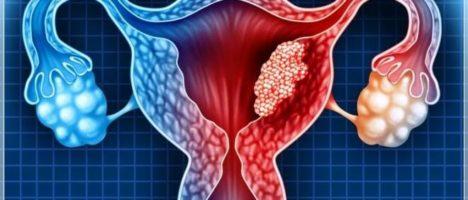 Naso elettronico per la diagnosi precoce del tumore dell'ovaio: Istituto Nazionale dei Tumori e Università Statale di Milano insieme