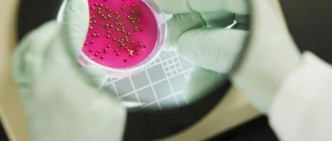 Nell'anno del virus, non scordiamoci funghi e batteri: al via una campagna per informare e sensibilizzare sui superbugs e sul fenomeno dell'antimicrobico-resistenza