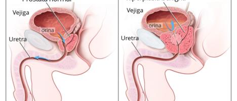 Cancro della prostata: enzalutamide è stata approvata dalla Commissione Europea per il trattamento degli uomini con la patologia metastatica sensibile agli ormoni